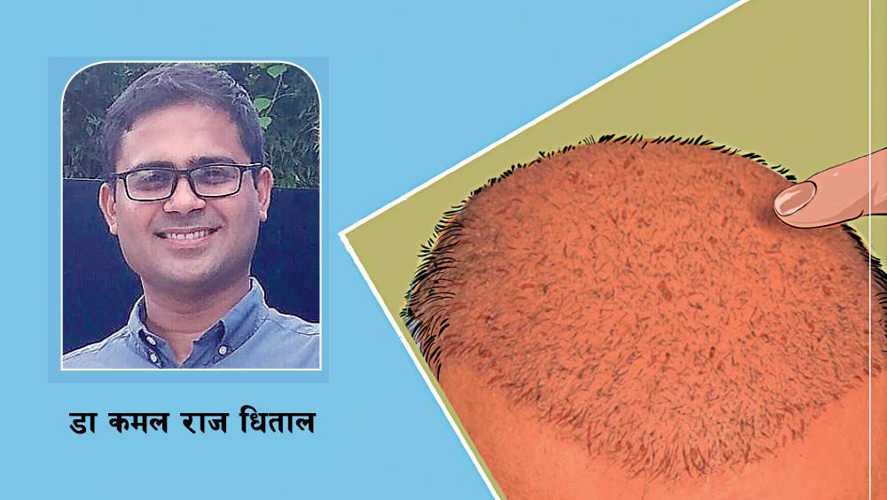 kapallii-sanathara-ra-savacachha-rakhana-kasata-karama-thhayana-thana-548186.jpg
